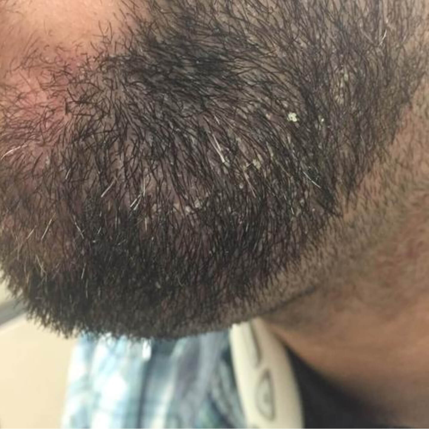 10 Reasons Why the Skin Under Your Beard Hurts: Stop Beard