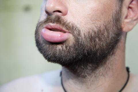 The Disadvantages of Using Beard Oil: Side Effects and Risks